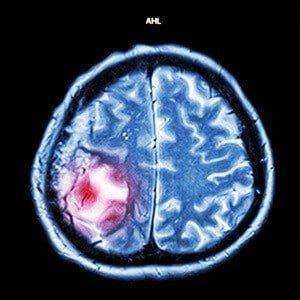 beyin-tumoru-belirtileri-nelerdir-300