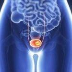 Prostat Kanseri Belirtileri Nelerdir?