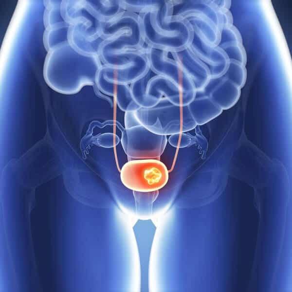 prostat kanseri başlangıç ve ileri evre belirtileri