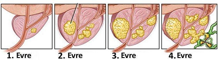Prostat kanseri evreleri nelerdir