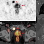 A NEW IMAGING METHOD FOR PROSTATE CANCER, Ga-68 PSMA PET/CT