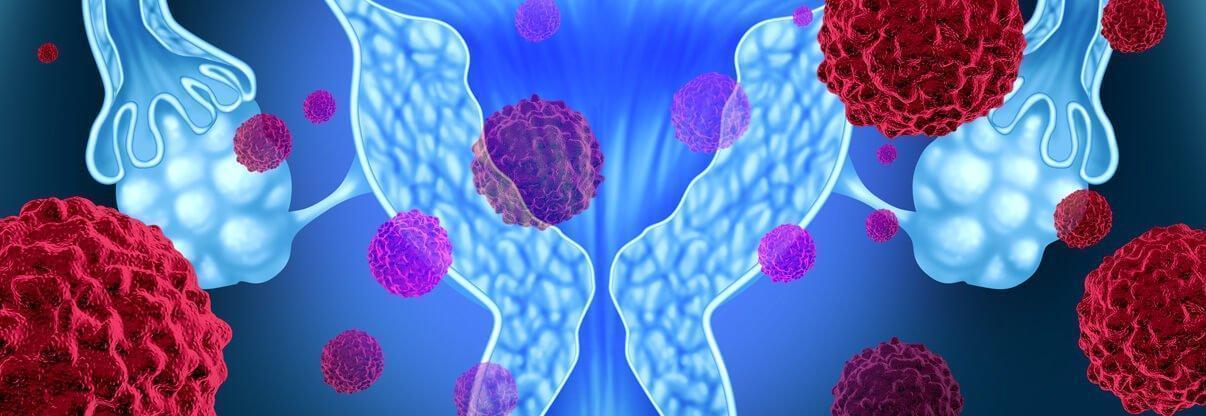Rahim ağzı kanseri