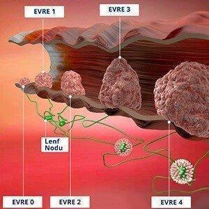 kolon kanserinin belirtileri nelerdir