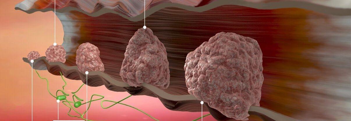 Kalın bağırsağımızın son kısmını dolduran tümörü beynimiz dışkı gibi algıladığından sürekli tuvalete gitme ve onu çıkarma isteği duyarız.