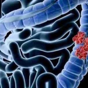 bağırsak kanseri belirtileri nedir