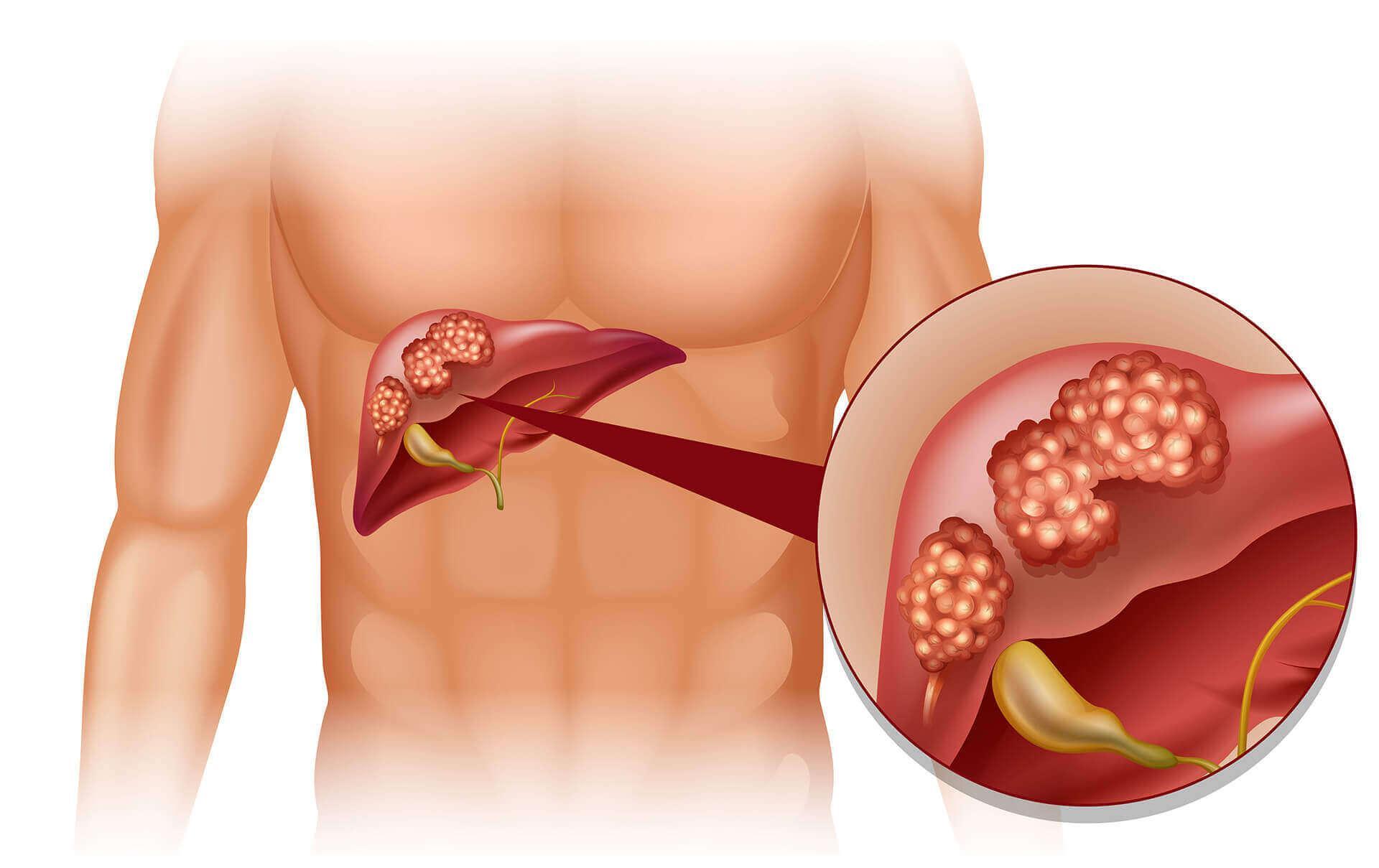 Karaciğer Hastalıkları Belirtileri: Karaciğer Hasarı Belirtileri
